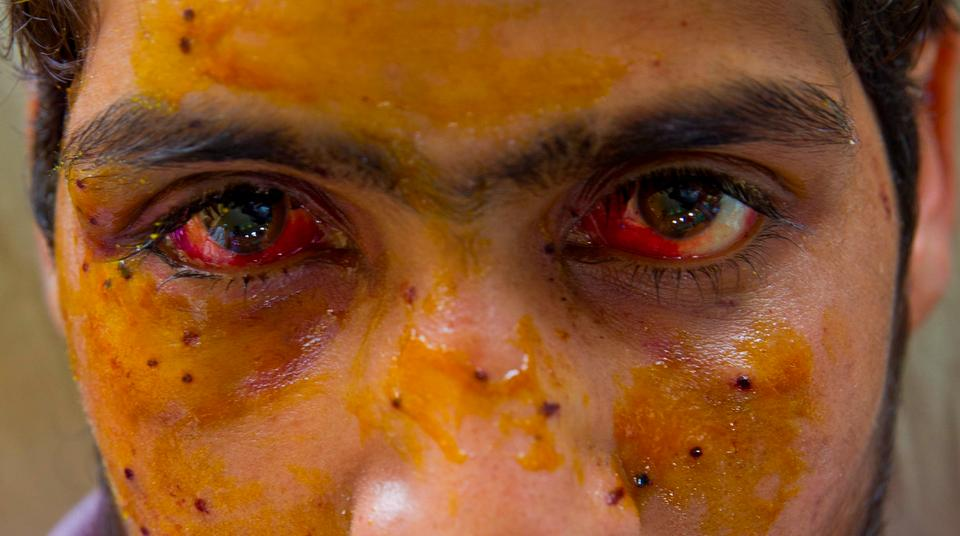 """My World is Dark"" — State Violence and Pellet-firing Shotgun Victims from the 2016 Uprising in Kashmir"